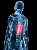 Дорзальные протрузии дисков грудного отдела