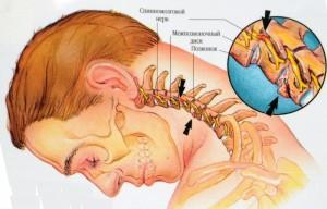 Поширений остеохондроз