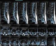 Дорзальная диффузная протрузия диска