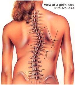 Боль в правом боку спины выше талии