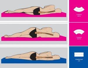 Остеохондроз поясничного отдела позвоночника лечение
