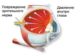 Зрение и шейный остеохондроз - Клиника Доктора Игнатьева г. Киев