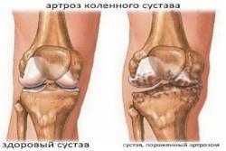 корригирующая остеотомия коленного сустава видео