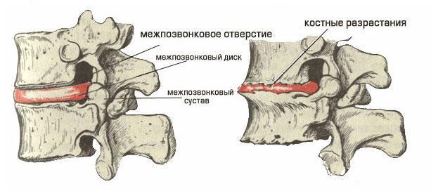Как лечить шейный остеохондрозфорум