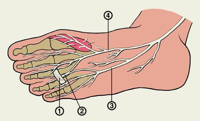 Диагноз по симптомам остеохондроза