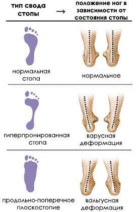 Боли в суставах ступней у детей ромашка при болях в суставах