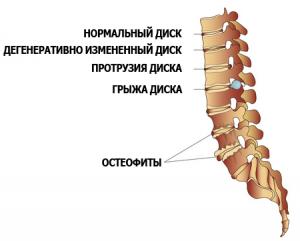 Лфк при остеохондрозе грудного отдела позвоночника