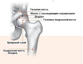 Щелчок в тазобедренном суставе компресс на коленный сустав из сырых яиц