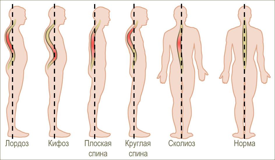 Межпозвонковая грыжа лечение йога