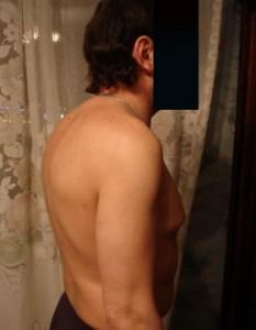 Сутулость спины и боли