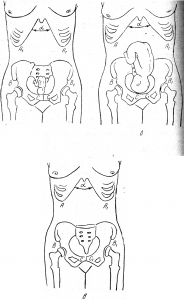 Боли при ходьбе во время беременности
