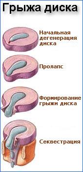 Новые препараты лечения хламидий