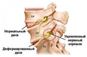 Причина грудного остеохондроза