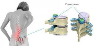 Міжхребцева грижа поперекового відділу лікування