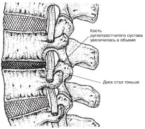 Воспаление седаличного нерва