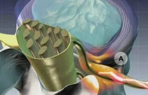Рентген картина протрузия дисков