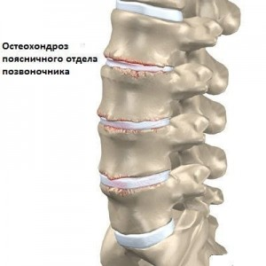 Распространенный остеохондроз шейного отдела
