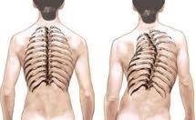 Сколиоз позвоночника в грудном отделе