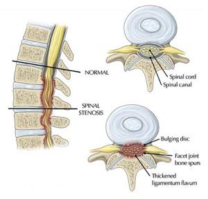 Синдром грушоподібної м