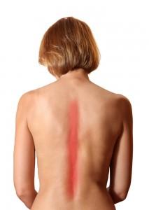 Остеохондроз симптомы
