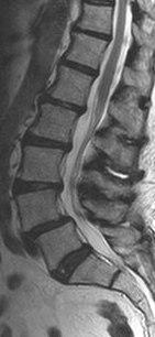 Межпозвоночная грыжа поясничного отдела симптомы лечение