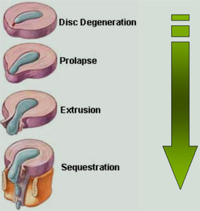 Протрузия поясничного отдела на ренгене