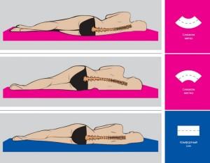Лікування поперекового остеохондрозу