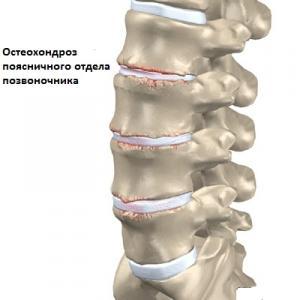 Боль слевой стороны и отдает в спину