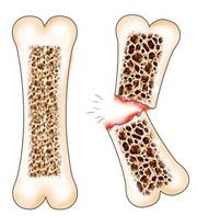 Переломы костей при остеопорозе