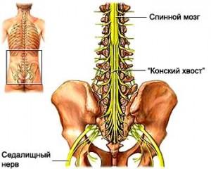Шейно грудной остеохондроз обострение лечение