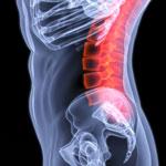 Міжхребцева грижа попереково крижового відділу хребта