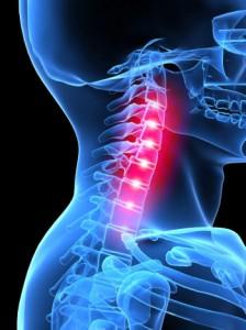 Остеохондроз шийного відділу хребта лікування