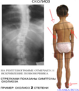 Сколиоз лечение в Киеве