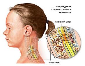 Может ли высокое давление при шейном остеохондрозе