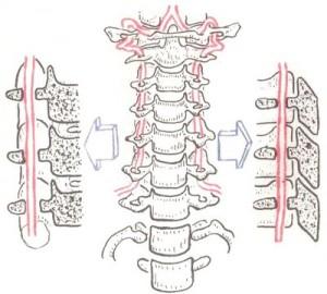 Запаморочення при шийному остеохондрозі