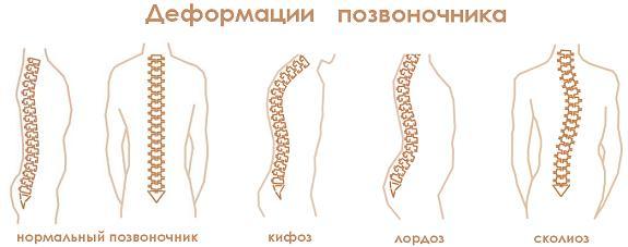 Как и чем лечить плечевой остеохондроз