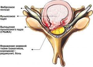 Эффективное средство от остеохондроза шеи