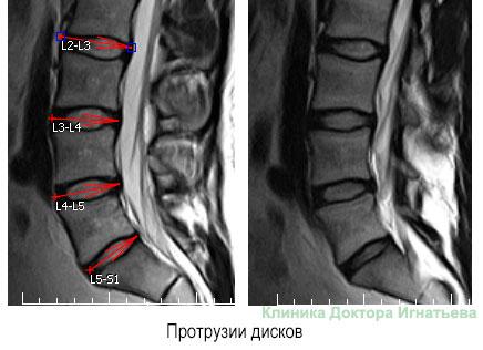Протрузия межпозвоночных дисков поясничного отдела лечение