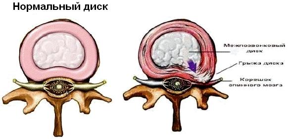Невралгия грудного отдела позвоночника симптомы