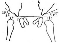 Асимметрия бедренных складок