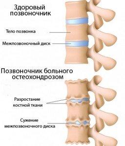 Остеохондроз поясницы лечение