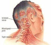 Горячая опликация при шейном остеохандрозе