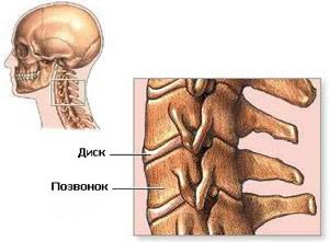 Болеутоляющие при шейном остеохондрозе
