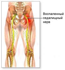 Воспаление сидалищного нерва