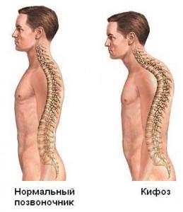 Лечение кифоза (Киев)