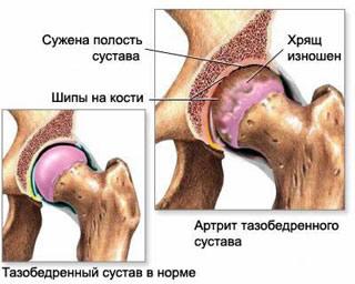 Болит тазобедренный сустав справа при беременности хруст в суставах что это такое и как лечить