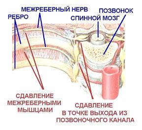 болит ребро справа под грудью