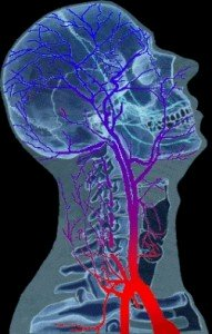 Какие головные боли при остеохондрозе?