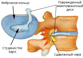 Остеохондроз шейно-грудного отдела позвоночника симптомы и лечение видео
