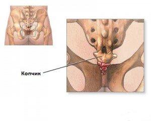 Пояснично крестцовый остеохондроз